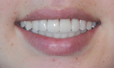 Before and After smile restoration