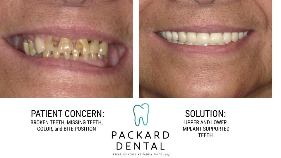 Great Carlsbad Dentists - Drs  Mark, Matt and Jared Packard